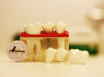 implant dentar straumann pret