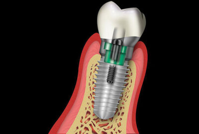 implant-perfect-web-fb