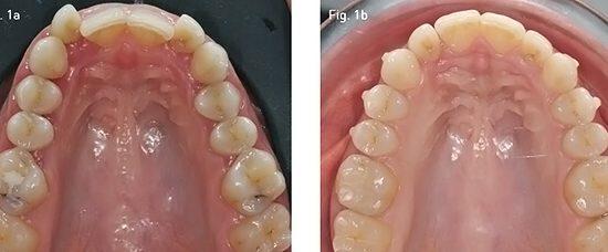 f22 Inainte Dupa Dentalevo 1